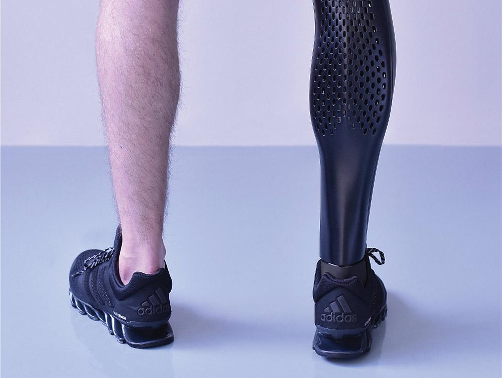 3D printed prosthetic leg cover